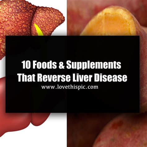 alcohol and the liver picture 10