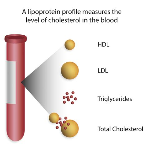 cholesterol testing picture 7