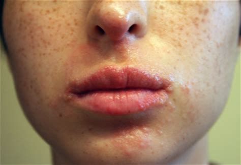 acne around mouth area picture 15