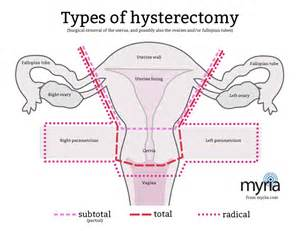 aging after hysterectomy picture 6