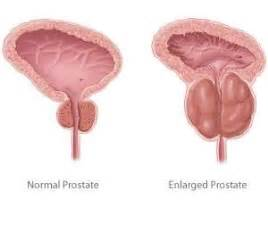 Constipation after prostate surgery picture 7