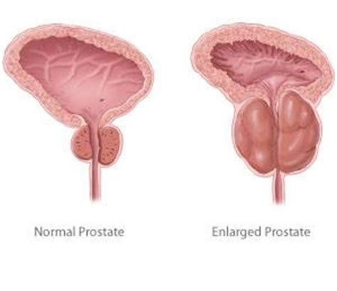 Prostate operation constipation picture 1