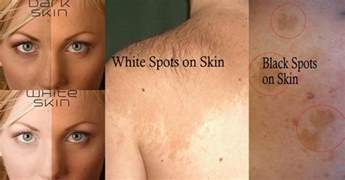 medical conditions darkening of skin picture 3