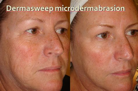microderm for acne scars picture 3
