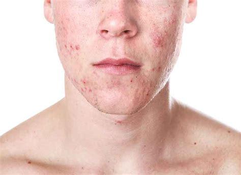 acne vulgaris pictures picture 15
