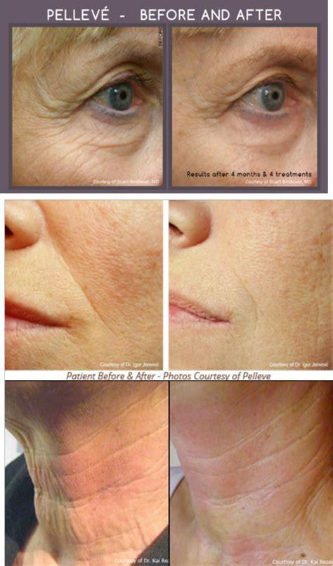 pellefirm skin tightening reviews picture 1