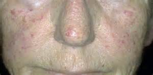 female exam penis erect picture 11
