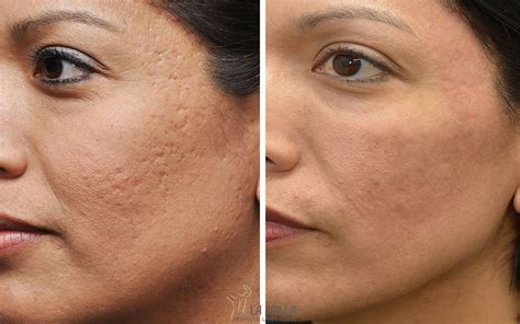 acne scar revision in encino picture 17