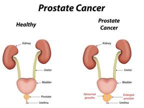 household items to stimulate prostate picture 10