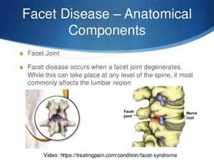facet degenerative joint disease picture 19