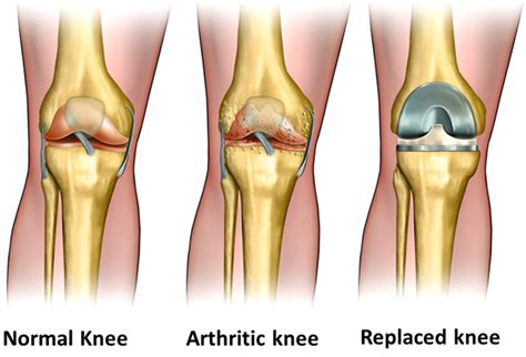 cost of knee joint replacement picture 19