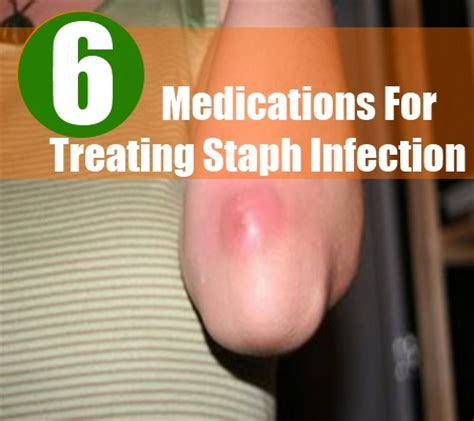 antibiotic cream that can be used for staph picture 10