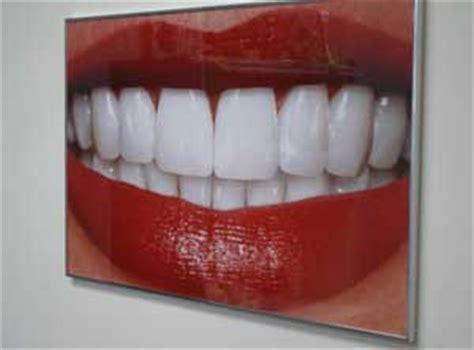 orlando teeth whitening picture 13