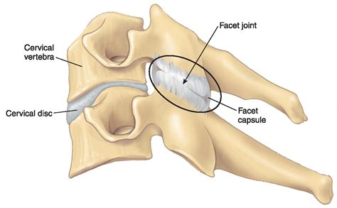 facet joint picture 1