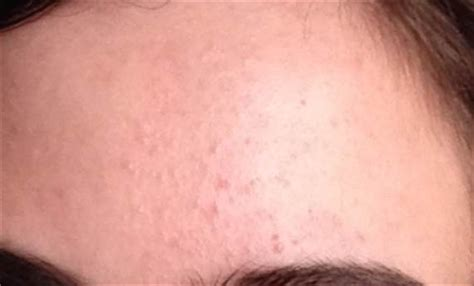 spots underneath skin picture 2