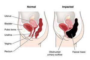 abdominal pain after bowel movement picture 5