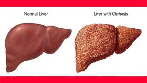 cirrhosis of the liver picture 7