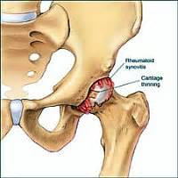 discribe pain in hip joint from oa picture 5