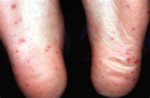 ways of contracting herpes picture 13
