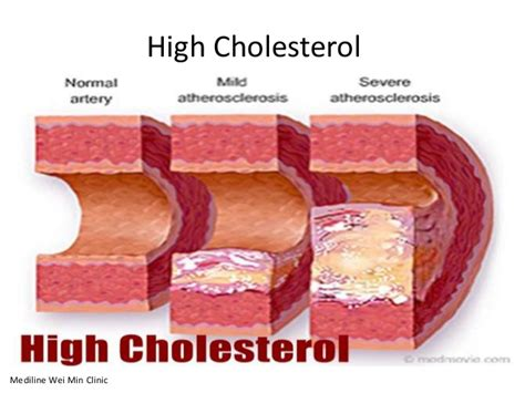 Managing cholesterol picture 10