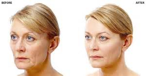 face lift skin turn black picture 14