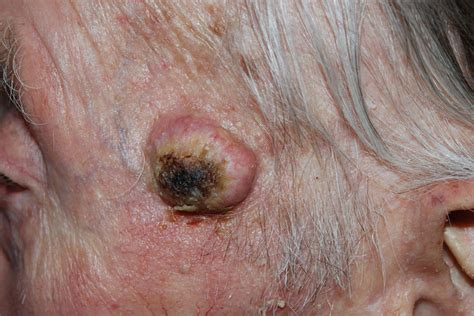 about skin cancer picture 2