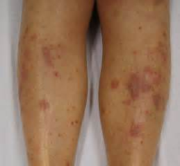 skin allergy tagalog version picture 14