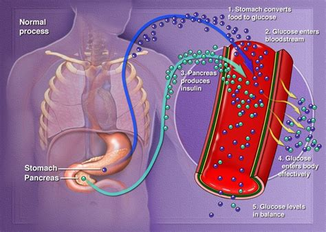 gi motility disorders and blood glucose problems picture 2
