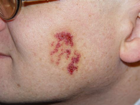 what causes acne scaring picture 1