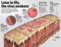 herpes vaccines picture 10