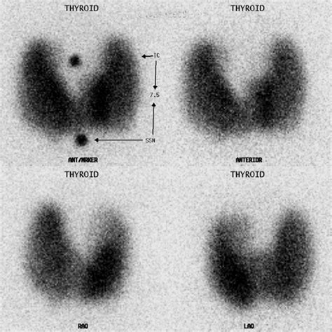 abnormal thyroid scan and uptake picture 7