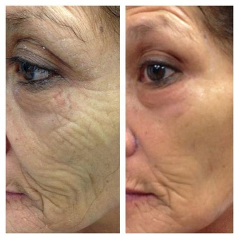 antiaging before after picture 19