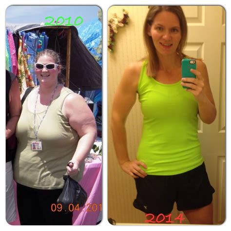 weight loss band picture 2
