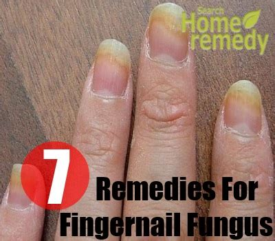 finger nail fungus picture 11