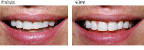 picture of h cavities picture 10