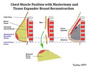 pectoral stretch on mastectomy picture 2