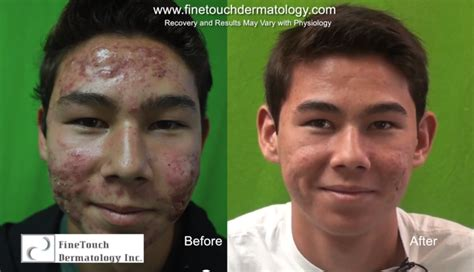 lo gestrel for acne treatment picture 14