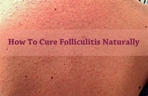 folliculitis home remedy picture 7
