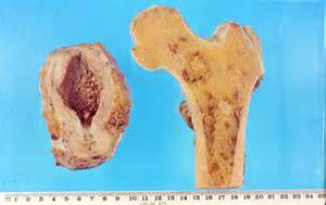 Prostate bone metastasis picture 9