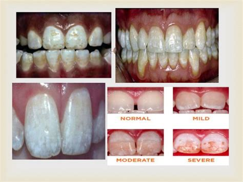 discolored teeth fluorosis picture 3