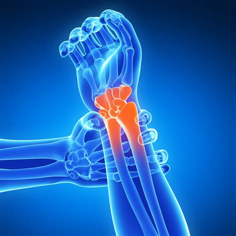 can water kifer give you joint pain picture 2