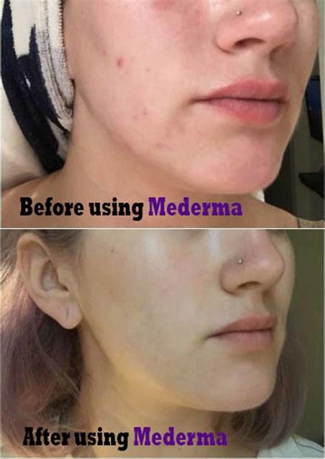 acne scars skin care picture 15