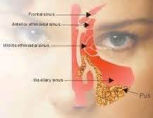 can wisdom h cause problems with the sinus picture 9