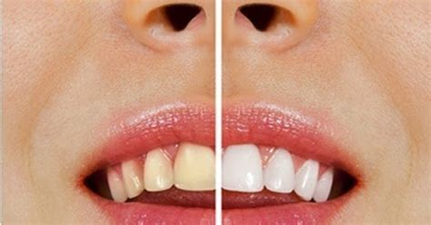 what can you use to whiten your h picture 1