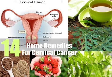herbs that cure cancer picture 6