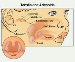 do swollen tonsils cause sleep apnea picture 15