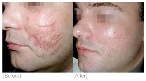 acne skin care and hashimotos picture 17