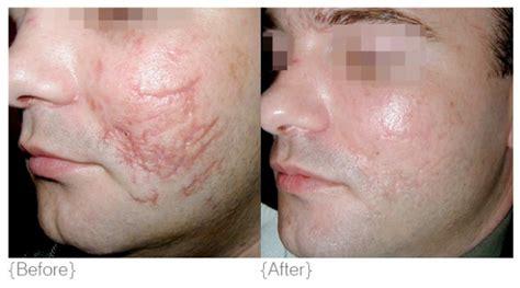 acne scar incision picture 18