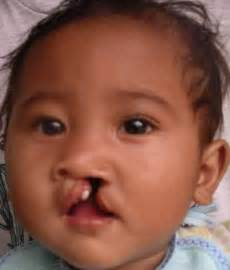 cleft lip cleft palate picture 17