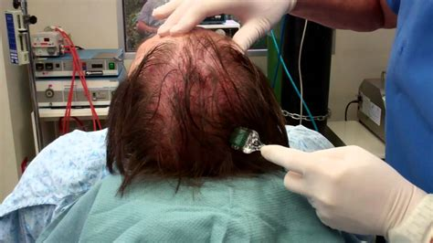 derma needle hair regrow picture 9